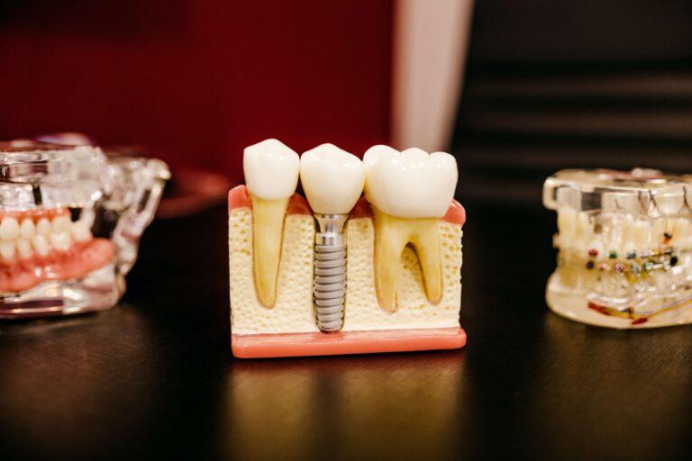 implantologia Croazia dental